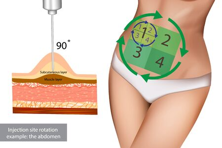 Injection sites for insulin injections. Injection site rotation example: the abdomen