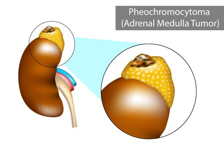 Pheochromocytoma (PH or PCC). Adrenal gland tumor