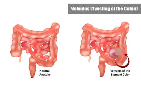 Volvulus of the Sigmoid Colon. Twisting of the Colon