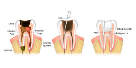Endodontic root canal treatment process. Dentistry, dental restoration concept. Tooth decay caries disease development Zdjęcie Seryjne - 154314283
