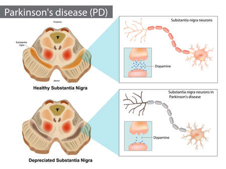 Parkinson s disease PD . Normal and Depreciated Substantia Nigra