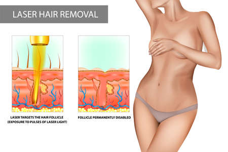 Laser hair removal. Process of hair removal by means of exposure to pulses of laser light