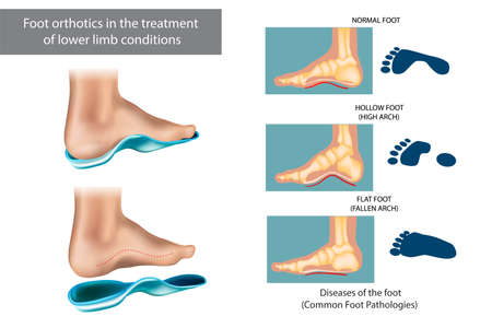 Diseases of the foot. Common Foot Pathologies. Foot orthotics in the treatment of lower limb conditions
