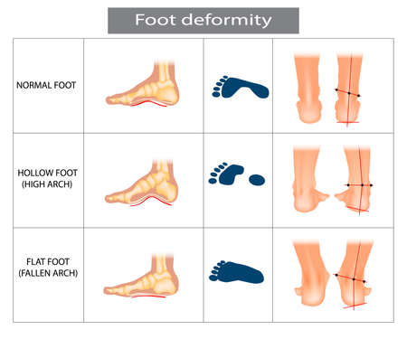 Foot deformation. Types pathologies of foot. Hollow, flat and normal foot. Medical infographic. 矢量图像