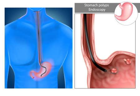 Removal gastric polyps. Stomach Upper endoscopy. Vector