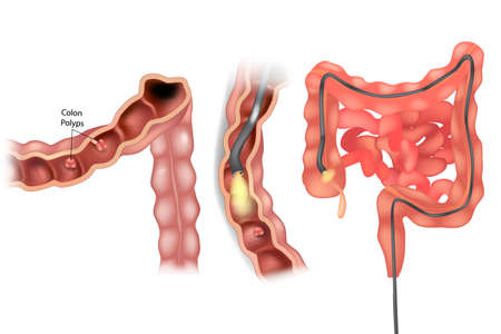 Removal polyps of the Colon. Colonoscopy medical illustration 矢量图像