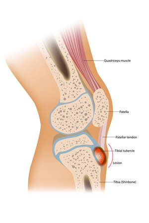 Osgood Schlatter disease or OSD is inflammation of the patellar ligament at the tibial tuberosity