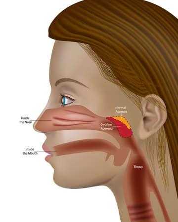 Adenoids, pharyngeal tonsil or nasopharyngeal tonsil Otolaryngology Adenoid hypertrophy