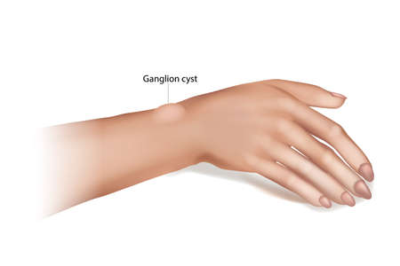 Ganglion Cyst of the Wrist and Hand. Synovial cyst or a Gideon s Disease, or a Bible Cyst, or a Bible Bump.