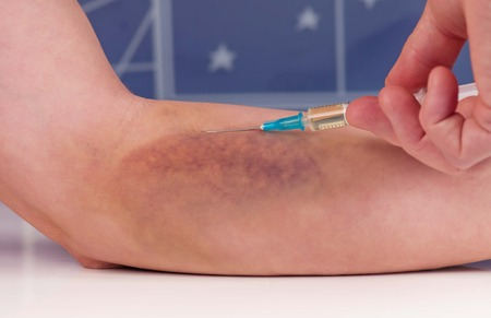 intravenously: Nurse gives an injection to the patient with big awful bruise on the hand