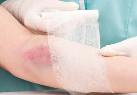 bandaged: Injured woman hand bandaged by nurse close-up