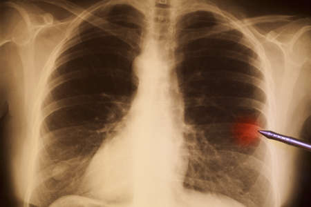 chest x ray: Lung cancer  Human chest X-ray, illuminated by a lightbox