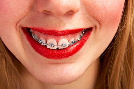 smiling woman with brackets Stock Photo - 9471400