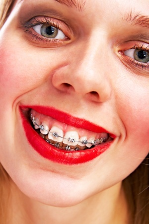 smiling woman with brackets Stock Photo - 9471401