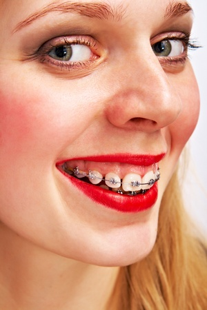 smiling woman with brackets Stock Photo - 9471462