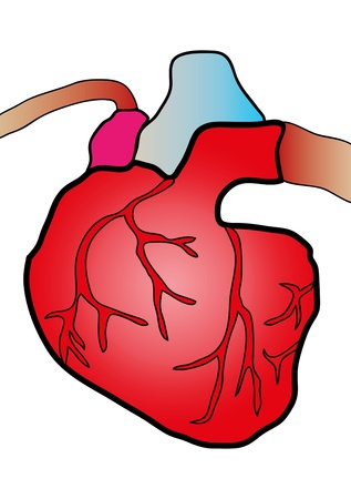 left ventricle: illustration of a heart cut in cardiovascular surgery Stock Photo
