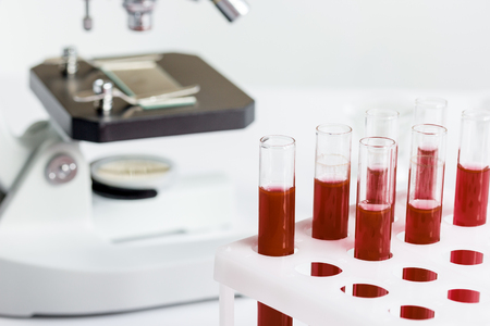 experimentation: blood in glass tubes on background of microscope in the laboratory