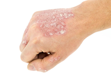 psoriasis on the hand isolated on white background