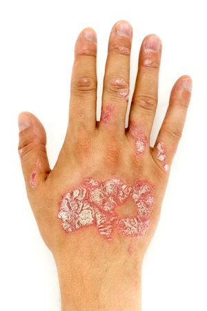 Psoriasis vulgaris on the man hand and finger nails with plaque, rash and patches, isolated on white background. Autoimmune genetic disease.