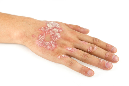 Psoriasis vulgaris on the male hand and finger nails with plaque, rash and patches, isolated on white background. Autoimmune genetic disease. Standard-Bild