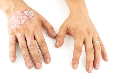 Psoriasis vulgaris sur les mains de l'homme avec de la plaque, des éruptions cutanées et des taches, isolé sur fond blanc. Maladie génétique auto-immune. Banque d'images - 83369600
