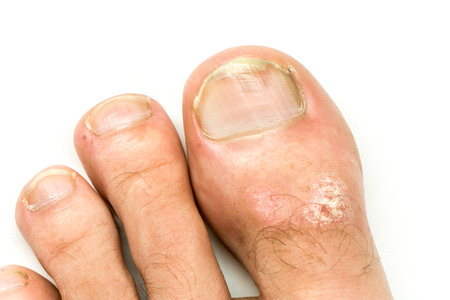 Closeup of Psoriasis vulgaris and fungus on the mans foot finger nails with plaque, rash and patches, isolated on white background. Autoimmune genetic disease. 版權商用圖片