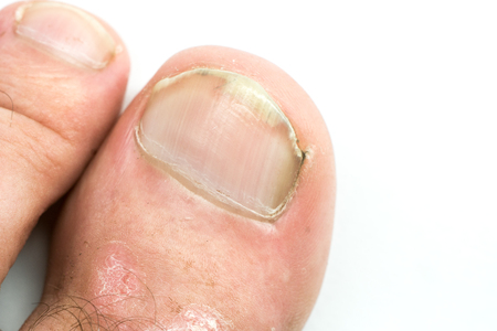 Closeup of Psoriasis vulgaris and fungus on the mans foot finger nails with plaque, rash and patches, isolated on white background. Autoimmune genetic disease. Reklamní fotografie