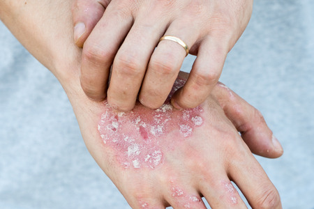 Man scratch oneself, dry flaky skin on hand with psoriasis vulgaris, eczema and other skin conditions like fungus, plaque, rash and patches. Autoimmune genetic disease.