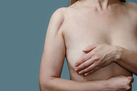Woman covers chest with arm, scar on top of shoulder