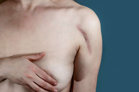 Topless woman body showing deep colloidal scar on top of arm. Medical concept, fracture.