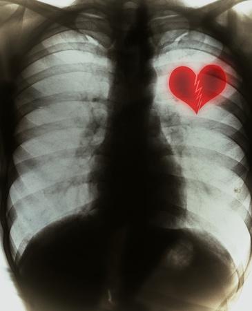 enfermedades del corazon: Coraz�n quebrado en negro la pel�cula de radiograf�a Foto de archivo