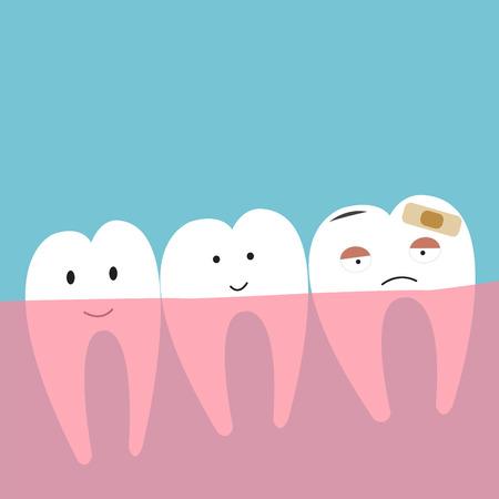 impacted: Teeth Illustration