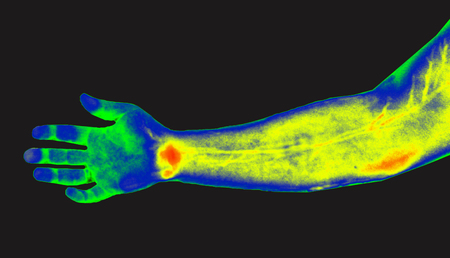 Thermografie der menschlichen Hand. Medizinische Thermografie Standard-Bild