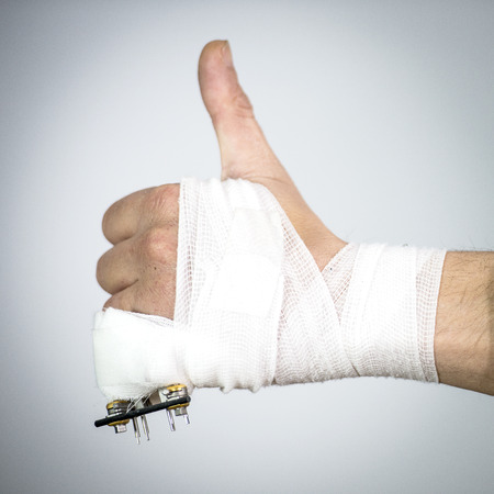 fixture: Bandaged hand with a broken pinky finger with an external rig fixture made from surgical steel pins and a carbon rod, making a thumbs up