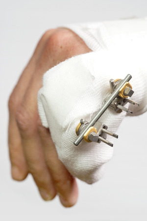phalanx: Close up of a Fractured hand with an external rig to mend a fractured pinky finger, four pins sticking outt of a broken phalanx in a finger, with a carbon rod as support structure.