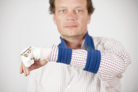 pinky: Man with fractured pinky showing pins and bandages with a sad expression. Stock Photo