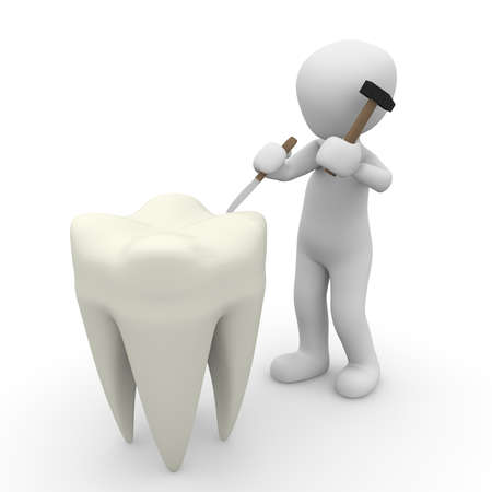 hollow body: A dentist repaired the very large teeth with a hammer. Stock Photo