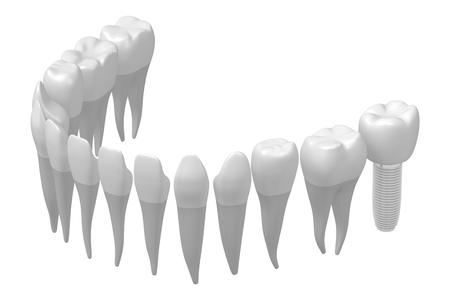 Dental implant/ tooth implant Stok Fotoğraf - 87436138