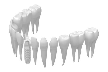 Dental implant/ tooth implant Stok Fotoğraf - 87436143