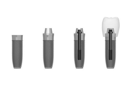 Dental implant tooth implant - steps