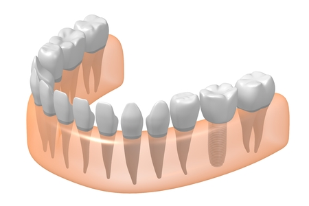 Dental implant tooth implant