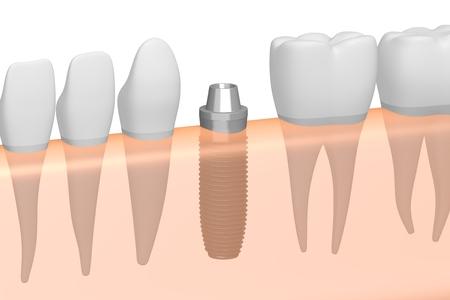 Dental implant/ tooth implant Stok Fotoğraf - 87436153