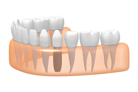 Dental implant/ tooth implant Stok Fotoğraf - 87436158
