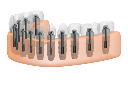 Teeth implants dental implants Stock Photo