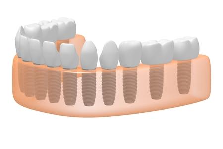 Teeth implants dental implants Banco de Imagens