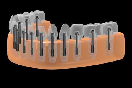 Dental implants teeth implants Banco de Imagens