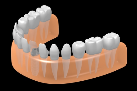 치과 용 임플란트  치아 임플란트 스톡 콘텐츠