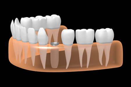 Dental implant/ tooth implant Stok Fotoğraf - 87522500