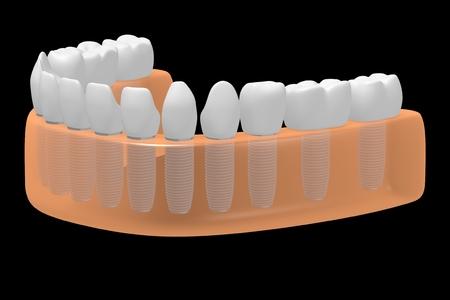 Dental implants teeth implants Stok Fotoğraf