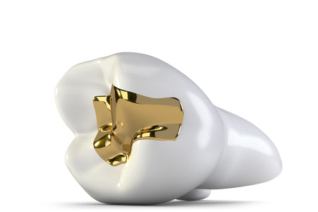 supplementary: dental gold